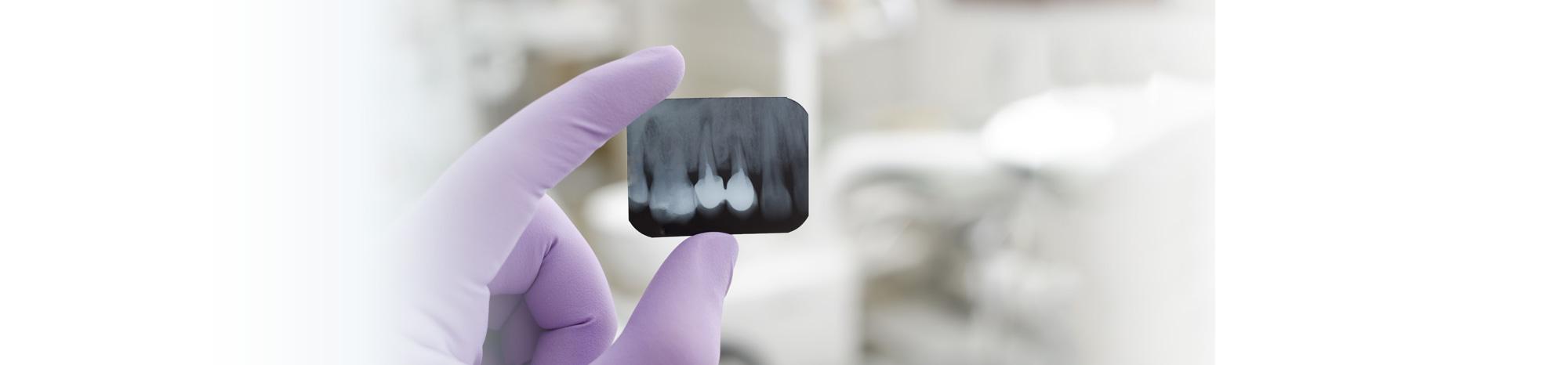Dental-Slider-5